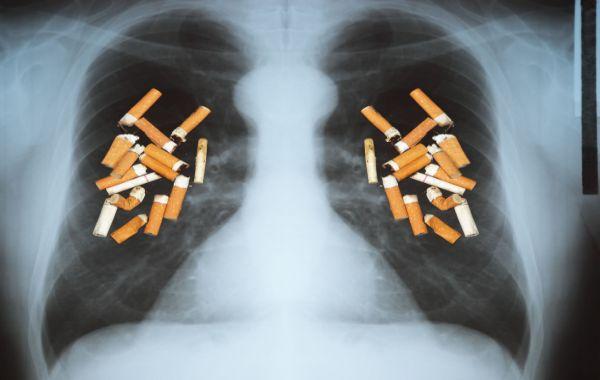 Cât plătește statul anual pentru fiecare fumător