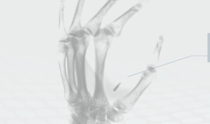 Plățile ar putea fi făcute prin microcipuri implantate în piele